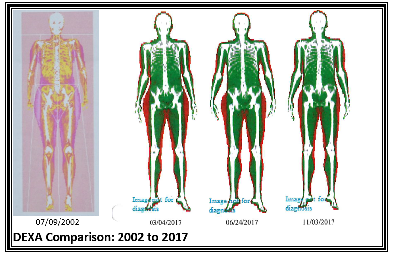 Changes in DEXA scan over time
